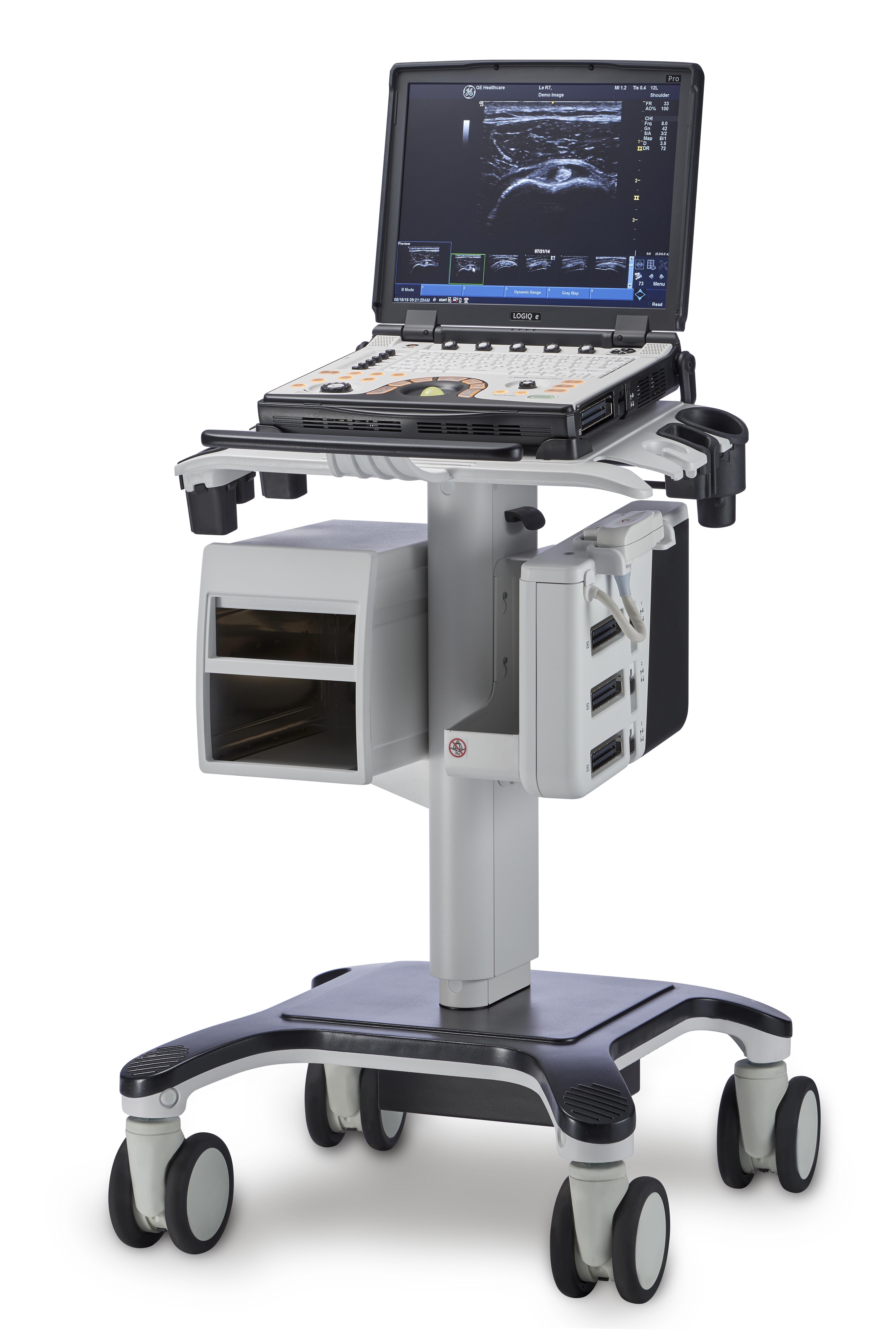 超音波診断装置2